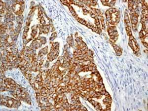 Immunohistochemistry (Formalin/PFA-fixed paraffin-embedded sections) - Anti-Cytokeratin 19 antibody [EP1580Y] - Cytoskeleton Marker (ab52625)