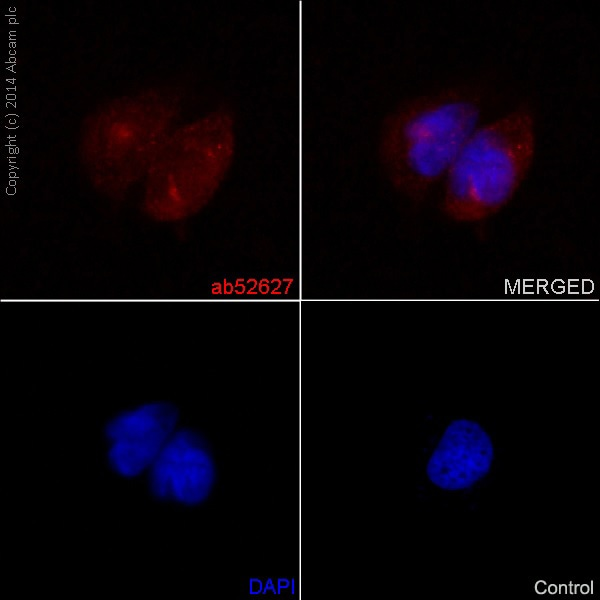 Immunocytochemistry/ Immunofluorescence - Anti-Notch1 antibody [EP1238Y] (ab52627)