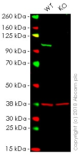 Western blot - Anti-VAV2 antibody [EP1067Y] (ab52640)