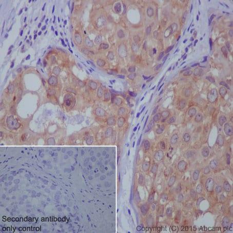 Immunohistochemistry (Formalin/PFA-fixed paraffin-embedded sections) - Anti-STK3/MST-2 antibody [EP1466Y] (ab52641)