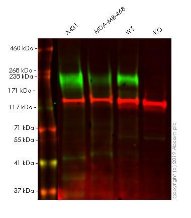 Western blot - Anti-EGFR antibody [EP38Y] (ab52894)