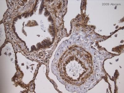 Immunohistochemistry (Formalin/PFA-fixed paraffin-embedded sections) - Anti-Integrin beta 1 antibody [EP1041Y] (ab52971)