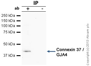 Immunoprecipitation - Anti-Connexin 37 / GJA4 antibody (ab58918)