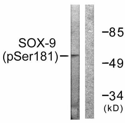 Western blot - Anti-SOX9 (phospho S181) antibody (ab59252)
