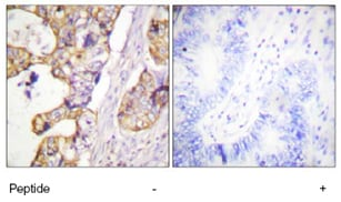 Immunohistochemistry (Formalin/PFA-fixed paraffin-embedded sections) - Anti-Cytokeratin 8 antibody (ab59400)
