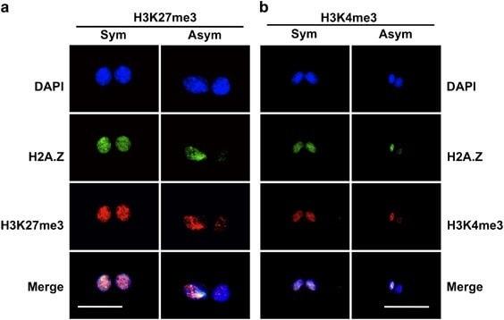 Immunocytochemistry/ Immunofluorescence - Anti-Histone H3 (tri methyl K27) antibody [mAbcam 6002] - ChIP Grade (ab6002)