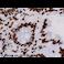 Immunohistochemistry (Formalin/PFA-fixed paraffin-embedded sections) - Anti-hnRNP A2B1 antibody [DP3B3] (ab6102)