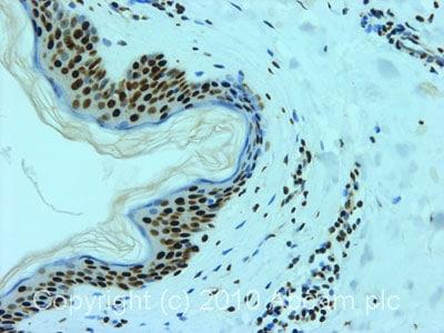 Immunohistochemistry (Formalin/PFA-fixed paraffin-embedded sections) - Anti-hnRNP L antibody [4D11] (ab6106)