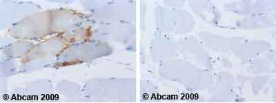 Immunohistochemistry (Formalin/PFA-fixed paraffin-embedded sections) - Anti-NCAM1 antibody [ERIC-1] (ab6123)