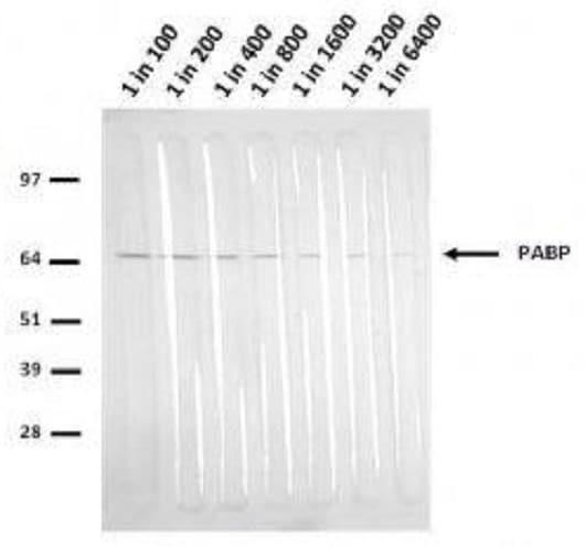 Western blot - Anti-PABP antibody [10E10] (ab6125)