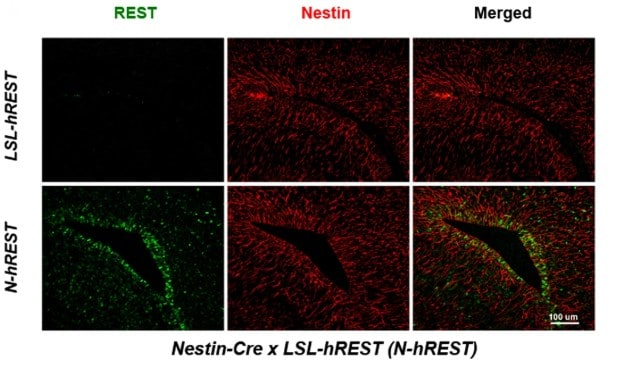 Immunohistochemistry (Formalin/PFA-fixed paraffin-embedded sections) - Anti-Nestin antibody [Rat-401] - Neural Stem Cell Marker (ab6142)
