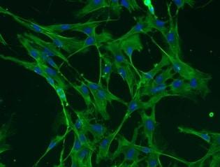 Immunocytochemistry/ Immunofluorescence - FITC Anti-beta Actin antibody [AC-15] (ab6277)