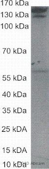 Western blot - Anti-Collagen I antibody [COL-1] (ab6308)