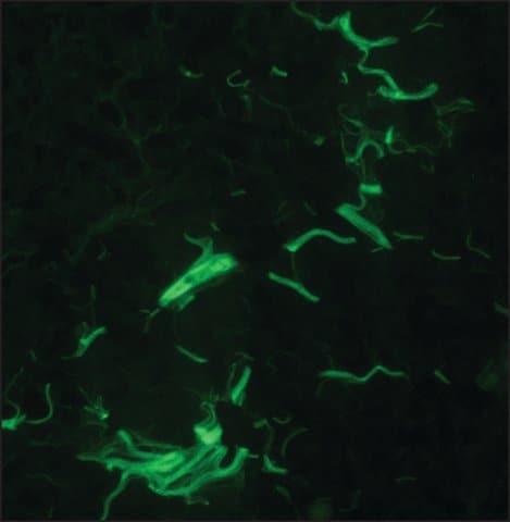 Immunohistochemistry (Frozen sections) - Anti-Collagen I antibody [COL-1] (ab6308)