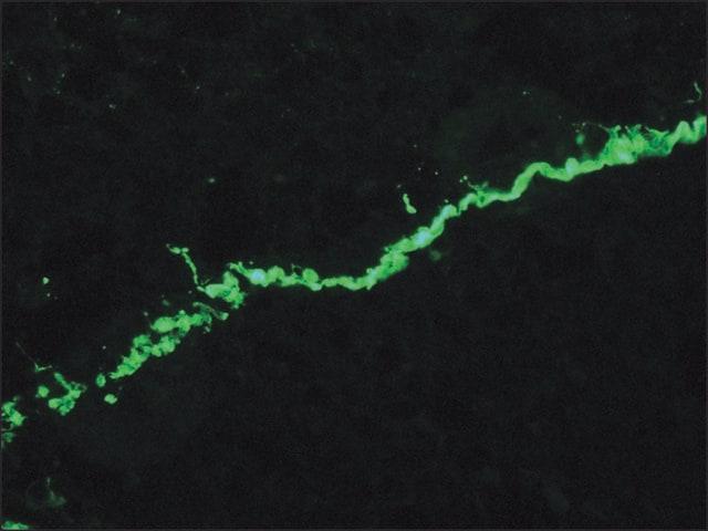 Immunohistochemistry (Frozen sections) - Anti-Collagen VII antibody [LH7.2] (ab6312)