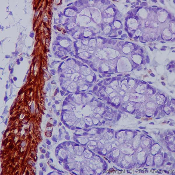 Immunohistochemistry (Formalin/PFA-fixed paraffin-embedded sections) - Anti-Desmin antibody [DE-U-10] - Cytoskeleton Marker (ab6322)