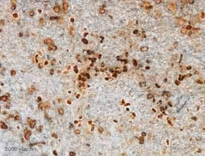 Immunohistochemistry (Formalin/PFA-fixed paraffin-embedded sections) - Anti-BrdU antibody [BU1/75 (ICR1)] (ab6326)