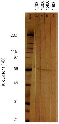Western blot - Anti-Cytomegalovirus antibody [6F12] (ab6500)