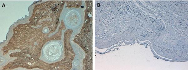 Immunohistochemistry (Formalin/PFA-fixed paraffin-embedded sections) - Biotin Anti-Collagen I antibody (ab6577)
