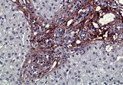 Immunohistochemistry (Formalin/PFA-fixed paraffin-embedded sections) - Anti-Collagen IV antibody (ab6586)