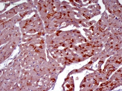 Immunohistochemistry (Formalin/PFA-fixed paraffin-embedded sections) - Goat Anti-Rabbit IgG H&L (HRP) (ab6721)