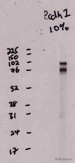 Western blot - Goat Anti-Mouse IgG H&L (HRP) (ab6789)