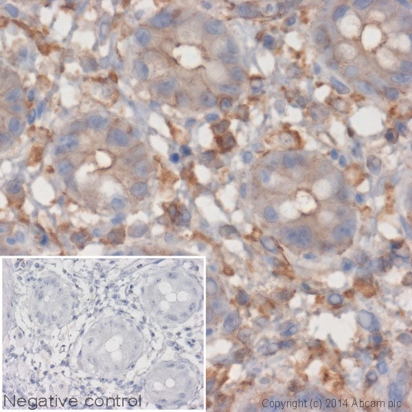 Immunohistochemistry (Formalin/PFA-fixed paraffin-embedded sections) - Donkey Anti-Rabbit IgG H&L (HRP) (ab6802)