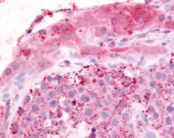 Immunohistochemistry (Formalin/PFA-fixed paraffin-embedded sections) - Anti-Adrenomedullin Receptor L1 antibody (ab61417)