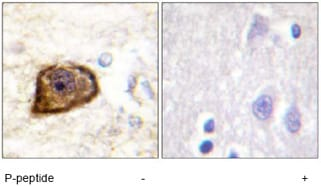 Immunohistochemistry (Formalin/PFA-fixed paraffin-embedded sections) - Anti-PDGF Receptor beta (phospho Y1021) antibody (ab62437)
