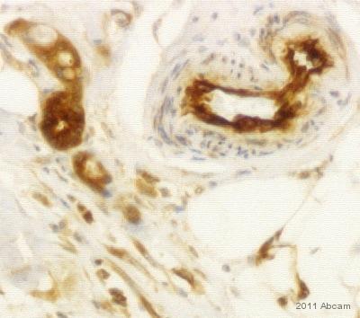 Immunohistochemistry (Formalin/PFA-fixed paraffin-embedded sections) - Anti-IF3EI antibody (ab64900)