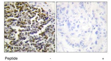 Immunohistochemistry (Formalin/PFA-fixed paraffin-embedded sections) - Anti-Treacher Collins syndrome protein antibody (ab65212)