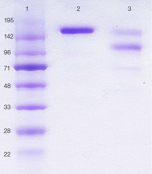 SDS-PAGE - Native Human IgE protein (Azide free) (ab65866)
