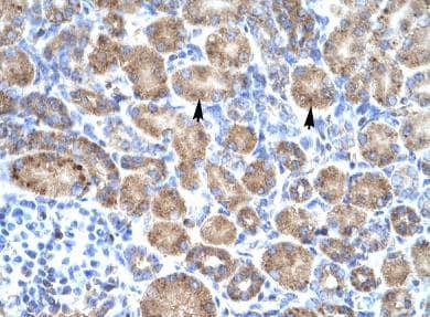 Immunohistochemistry (Formalin/PFA-fixed paraffin-embedded sections) - Anti-POU4F3 antibody (ab66260)