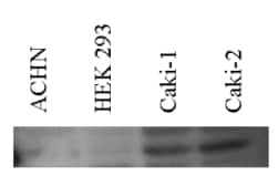 Western blot - Anti-Carbonic anhydrase 2/CA2 antibody (ab7001)