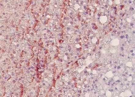 Immunohistochemistry (Formalin/PFA-fixed paraffin-embedded sections) - Anti-Nitro tyrosine antibody [HM.11] (Biotin) (ab7225)