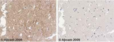 Immunohistochemistry (Formalin/PFA-fixed paraffin-embedded sections) - Anti-alpha Internexin antibody (ab7259)