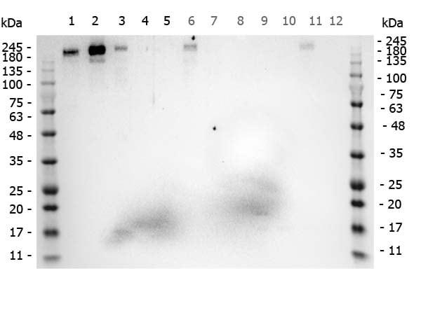Western blot - Anti-Robo1 antibody (ab7279)