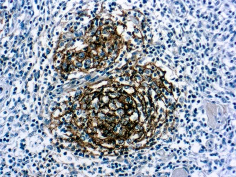 Immunohistochemistry (Formalin/PFA-fixed paraffin-embedded sections) - Anti-CD21 antibody [1F8], prediluted (ab7290)