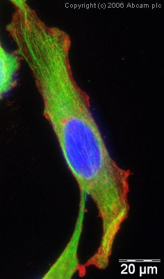 Immunocytochemistry/ Immunofluorescence - Anti-alpha Tubulin antibody [DM1A] - Loading Control (ab7291)