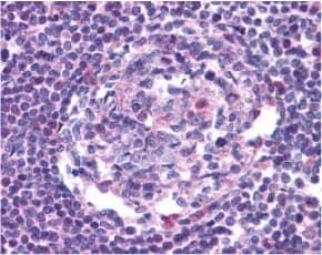 Immunohistochemistry (Formalin/PFA-fixed paraffin-embedded sections) - Anti-CCR5 antibody (ab7346)