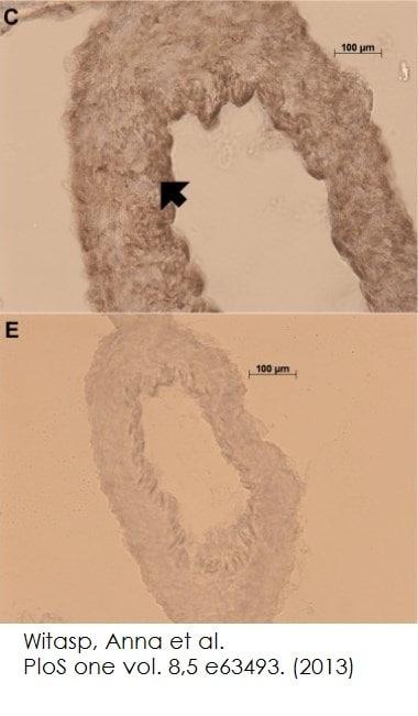 Functional Studies - Normal Goat Serum (ab7481)