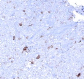 Immunohistochemistry (Formalin/PFA-fixed paraffin-embedded sections) - Anti-EBV Latent Membrane Protein 1 antibody [CS1, CS2, CS3, CS4], prediluted (ab7502)