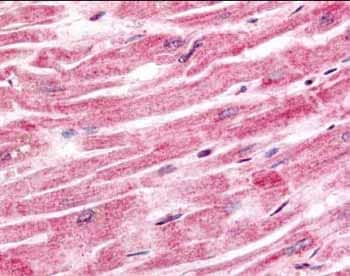Immunohistochemistry (Formalin/PFA-fixed paraffin-embedded sections) - Anti-Sprouty 4/Spry-4 antibody (ab7513)