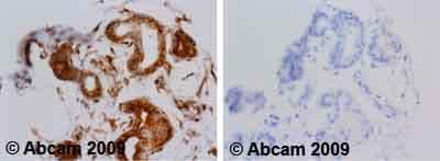 Immunohistochemistry (Formalin/PFA-fixed paraffin-embedded sections) - Anti-alpha Tubulin antibody [TU-01] (ab7750)