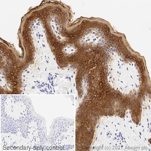 Immunohistochemistry (Formalin/PFA-fixed paraffin-embedded sections) - Anti-pan Cytokeratin antibody [C-11] (ab7753)