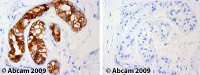 Immunohistochemistry (Formalin/PFA-fixed paraffin-embedded sections) - Anti-Cytokeratin 19 antibody [A53-B/A2] - Cytoskeleton Marker (ab7754)