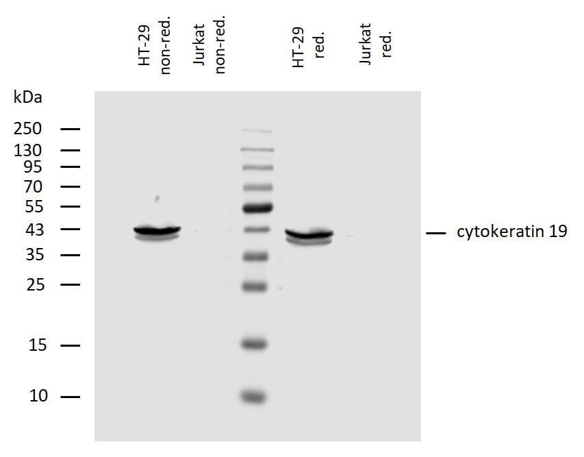 Western blot - Anti-Cytokeratin 19 antibody [A53-B/A2] - Cytoskeleton Marker (ab7754)