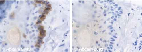 Immunohistochemistry (Formalin/PFA-fixed paraffin-embedded sections) - Anti-Cytokeratin 19 antibody [BA-17] (ab7755)
