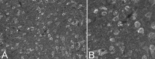 Immunohistochemistry (PFA perfusion fixed frozen sections) - Anti-Ubiquitin antibody (ab7780)