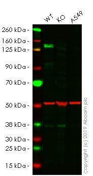 Western blot - Anti-160 kD Neurofilament Medium antibody [NF-09] - Neuronal Marker (ab7794)